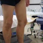 下肢静脈瘤 研修映像撮影制作 九州 福岡 東京 弊社では数多くのドクター向け 患者様向け ビデオ映像を制作制作しております。 お気軽にご相談ください。 092-623-7002 http://sotry.jp