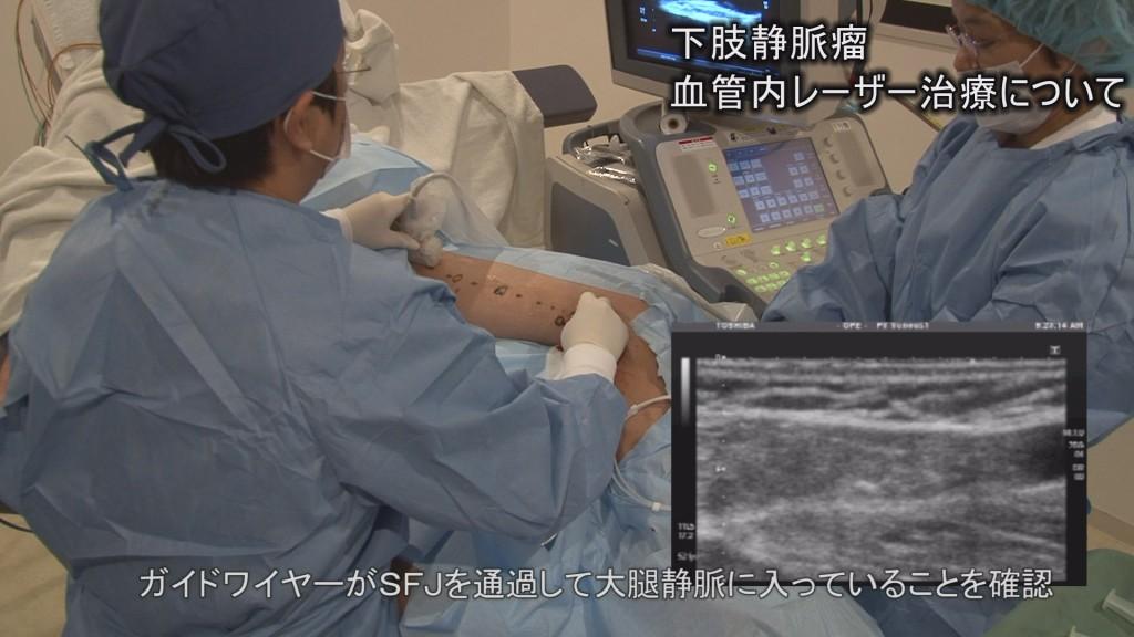 医学ビデオ制作 下肢静脈瘤血管内焼灼術実施 ビデオ解説